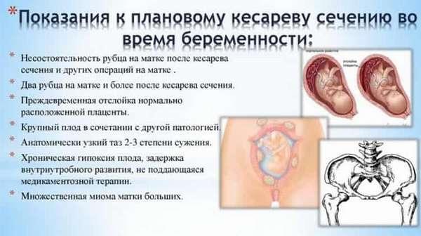 Операция кесарево сечение, восстановление после операции