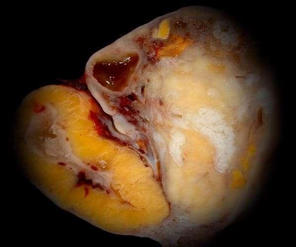 Киста жёлтого тела яичника во время месячных