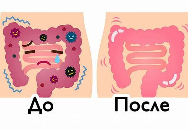 Чистка кишечника до и после