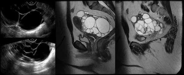 Недостаточность функции яичников особенности лечения