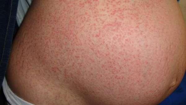 К сожалению, у препарата есть целый список побочных эффектов, включая сильные аллергические реакции.