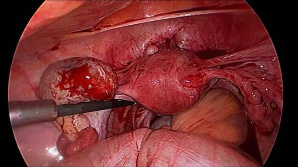Симптомы, причины и диагностика апоплексии яичника: лечение без операции