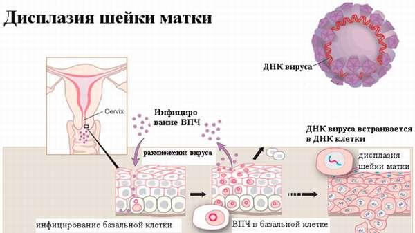 Радиоволновая эксцизия шейки матки